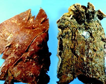 Left: healthy lung, Right: